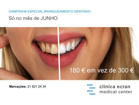 Campanha Branqueamento Dentário Junho 2019